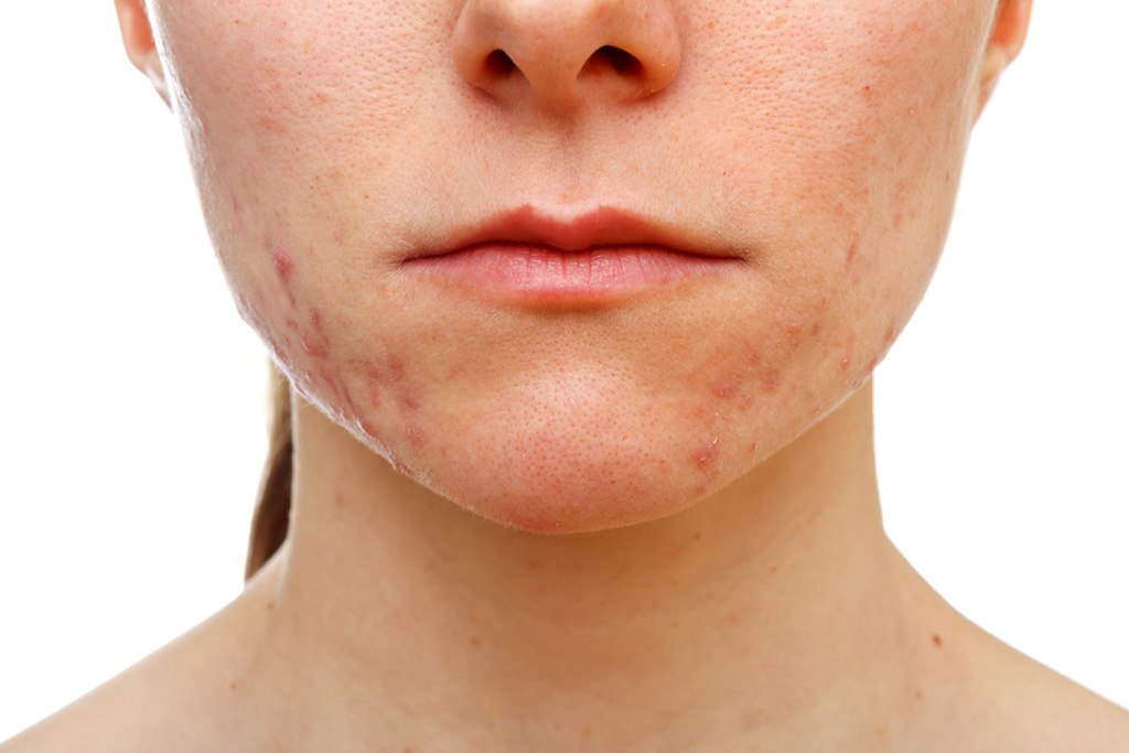 facial hair cause acne